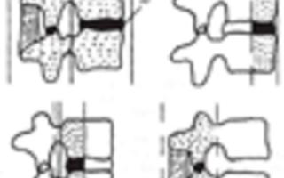 Переломы позвоночника. Классификация, клиника, диагностика. Ротационный перелом Ротационный перелом