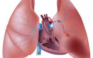 Тэла мелких ветвей легочной артерии. Потенциальная угроза для жизни — легочная эмболия и ее проявленияПрепараты][