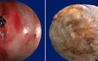 Артрит и артроз – в чём разница? Список отличий артрита от артроза: разница симптомов и лечения Главные причины артрита