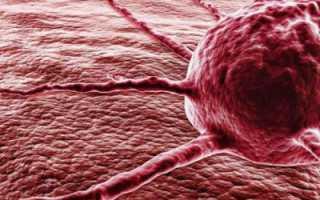 10 распространенных симптомов рака. Первые признаки онкологииЗаболевания][