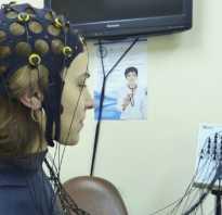 Возрастные изменения электрической активности мозга. ЭЭГ (Электроэнцефалограмма) — расшифровка. Экспериментальные изменения по ЭКГ