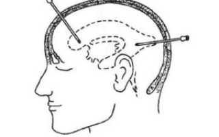 Пункция головного мозга для чего делают. Вентрикулярная пункция Пунктирование головного мозга