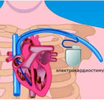 Кардиостимулятор для сердца. Как жить после установки кардиостимулятора? Искусственный водитель ритма показания