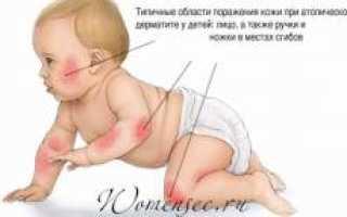 У ребенка покраснели щеки и шелушатся. Красные щеки у младенца. Как помочь малышу при покраснении щек