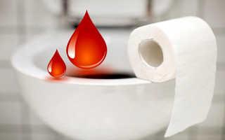 Кровь при запоре: причины, заболевания, лечение. Почему наблюдается кровь при дефекации и как диагностировать причину? При запоре выделяется кровь
