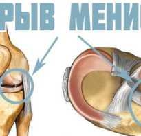 От чего болят колени? Заболевания суставов. От чего болят суставы в коленях у молодых женщин: причины и лечение Почему в 30 лет болят суставы