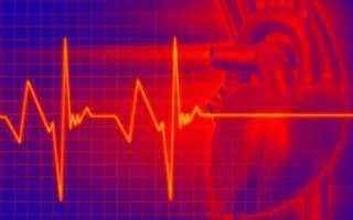 По электрокардиограмме можно судить о. ЭКГ сердца (электрокардиография). Основные классы патологии