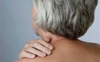 Миалгия код по мкб 10. Полимиалгия ревматическая — описание, причины, диагностика, лечение