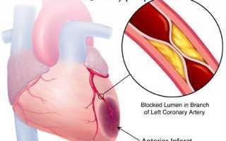 Дисфункция папиллярных мышц митрального клапана при инфаркте. Митрально папиллярная дисфункция Ишемическая дисфункция папиллярных мышц аускультативно