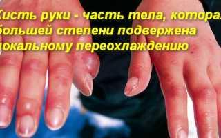 Первые признаки и помощь при обморожении пальцев рук и ступней. Что делать, если отморозил пальцы на руках. Первые обязательные действия Если обморозил пальцы что делать
