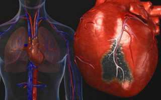 Хсн по левожелудочковому типу характеризуется. Левожелудочковая недостаточность (I50.1). Лечение проводится с помощью