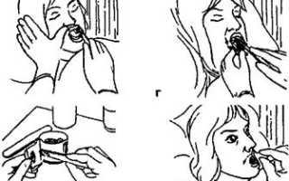 Паллиативная помощь тяжелобольным пациентам. Уход за полостью рта, зубами и зубными протезами. Уход за полостью рта лежачего больного Техника орошения полости рта при стоматитах