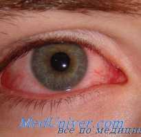 Постоянно воспаляются глаза после операции. Из-за чего может произойти воспаление глаза. Данная операция показана людям в таких случаях