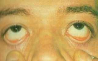 Строение конъюнктивы глаза. Строение конъюнктивы. Что такое конъюнктивальный мешок
