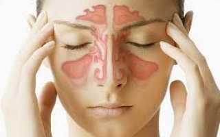 Кровавые сопли. Причины, симптомы и лечение соплей с кровью