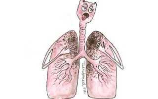Казуальный туберкулез или пневмония как отличить. Может ли пневмония перейти в туберкулез и как не допустить это. Различия между пневмонией и туберкулезом