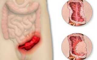 Значение сигмовидной кишки в организме человека. Как болит сигмовидная кишка. Особенности лечения сигмовидной кишки