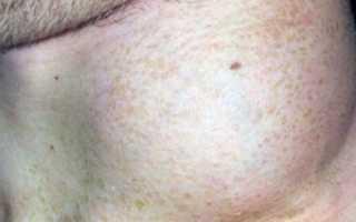 Злокачественная неходжкинская лимфома бду. Причины, лечение и прогноз выживаемости при диффузной неходжкинской лимфоме