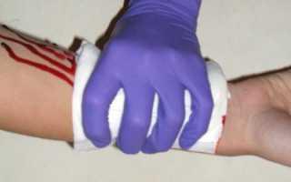 Алгоритм действий при артериальном кровотечении. Правила оказания первой помощи при артериальном кровотечении