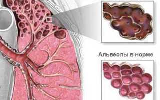 Специальная дыхательная гимнастика при эмфиземе легких. Комплекс дыхательной гимнастики при эмфиземе легких
