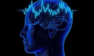 Нарушения корковой ритмики регуляторного характера. Расшифровка результатов электроэнцефалографии. БЭА — Биоэлектрическая активность мозга