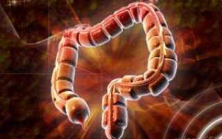 Неотложная помощь при паралитической кишечной непроходимости. Лечение паралитической кишечной непроходимости. Определения и механизмы послеоперационного илеуса