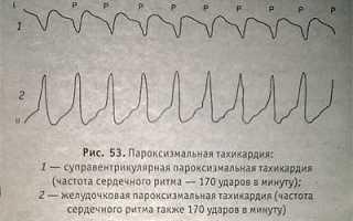 Пароксизмальные суправентрикулярные тахикардии диагностика и лечение. Пароксизмальная суправентрикулярная тахикардия. Профилактика суправентрикулярной тахикардии