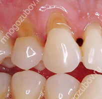 Можно ли восстановить удаленный зуб. Лучшая стоматология в Ульяновске. Этапы наращивания на штифт