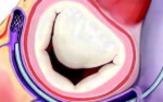 Дисфункция митрального клапана что это такое. Приобретенные пороки сердца Ишемическая дисфункция папиллярных мышц