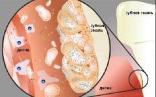 Как определить гингивит. Гингивит – что это такое, симптомы и лечение у взрослых. Причины появления гингивита