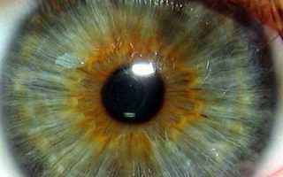 Как определить болезнь по глазным яблокам. Смотреть в оба. Какие болезни можно определить по радужке глаза. Почему у альбиносов красные глаза