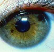 Пятна на белке глаз. Пятнышки на радужке: это нормально? На зрачке появилась точка