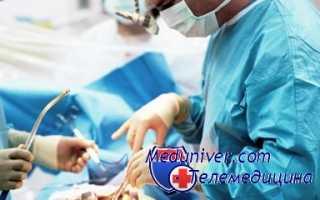 Сколько рассасывается синяк после операции малого таза. Повреждения живота. Забрюшинная гематома. Ретрохориальная и ретроплацентарная: особенности, отличия