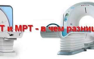 МРТ и компьютерная томография — Что лучше? Чем отличается кт от мрт Компьютерная томография или мрт что