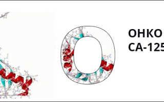 Анализ антиген са 125. Онкомаркеры — норма, можно ли не бояться рака? Чем опасен рак поджелудочной железы