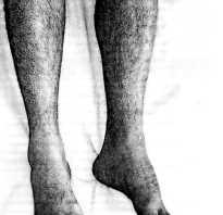 Почему худеет одна нога причины. Одна нога короче другой у ребенка. Миотония, сцепленная с полом, протекающая с атрофией мышц ног