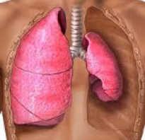 Что такое клапанный пневмоторакс. Заполнение плевральной полости воздухом на-зывается пневмотораксом. Пневмоторакс бывает открытый, закрытый и клапанный. Клапанный пневмоторакс иногда называют напряженным Перевести клапанный пневмоторакс в открытый