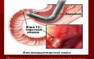 Комплексное лечение язвы желудка двенадцатиперстной. Лечение народными средствами язвы желудка и двенадцатиперстной кишки