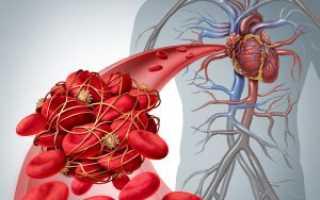 Препараты тромболитической терапии. Тромболитическая терапия: показания, результаты. Виды тромболитической терапии