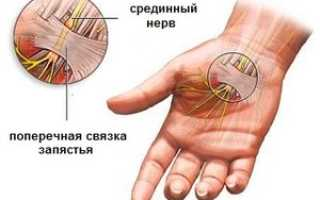 Синдром лучевого нерва лечение. Повреждения периферических неpвов. Существуют другие причины развития патологии