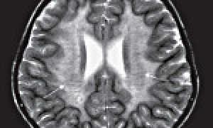 Признаки единичных мелких очагов лейкодистрофии. Что за болезнь лейкодистрофия Пелицеуса — Мерцбахера? Общие проявления для всех видов