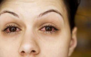 Воспалились глаза что делать в домашних условиях. Чем снять воспаление глаза в домашних условиях? Рецепты народной медицины