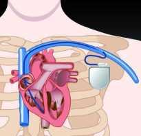 Болит плечо после установки кардиостимулятора. Кардиостимулятор – что это? Что можно и нельзя делать при наличии кардиостимулятора