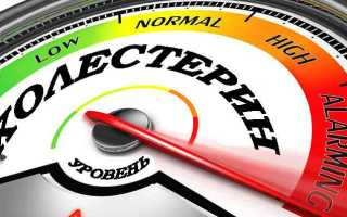 Какой должен быть холестерин в 45 лет. Холестерин: норма у женщин по возрасту и причины его колебаний