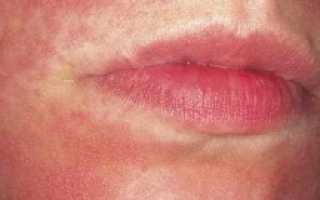Дерматомиозит — симптомы и лечение. Дерматомиозит: симптомы и лечение Дерматомиозит вторичный