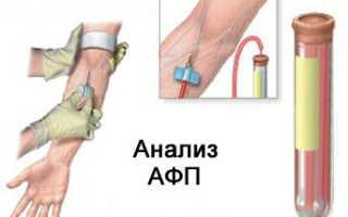 Если альфа протеин в норме. Что показывает АФП в анализе крови? О чем говорит повышение альфа-фетопротеина