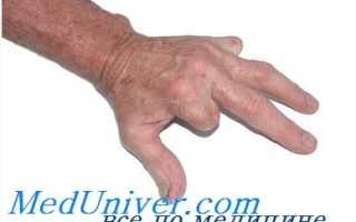 Закрытая подкожная пластика сухожилия пальца. Повреждения сухожилий сгибателей и разгибателей пальцев кисти. Диагностика, принципы лечения. Лечение повреждений сухожилий разгибателей кисти