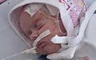 Асфиксия новорожденных: состояние опасное для жизни. Последствия асфиксии новорожденного Асфиксия при рожденииКрапивница][