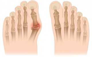 Как избавится от шишек на ступне. Лечение шишек на ногах у большого пальца без операции. Что представляет собой шишка у большого пальца ноги