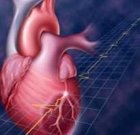 Восстановление после операции по шунтированию сердца. Как жить, а не «выживать», после операций шунтирования на сердце! Ограничения после операции коронарное шунтированиеДругие][